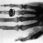 X-rays क्यों खतरनाक होती हैं? जानें 14 मज़ेदार तथ्य।