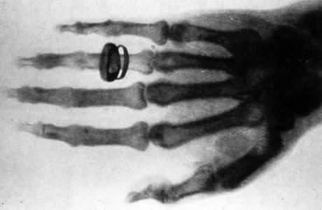 X-Rays in Hindi